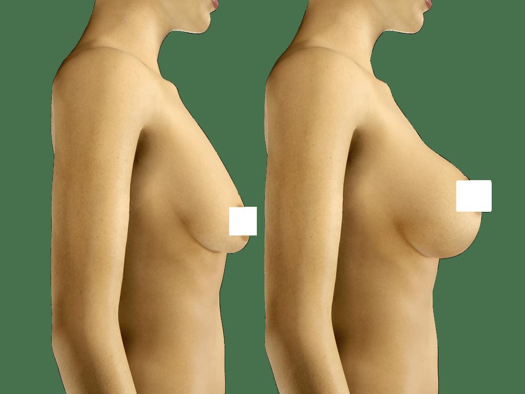 תמונות ניתוח הרמת חזה לפני ואחרי. ד״ר הלן קסטיאל גרין פיתחה שיטה ייחודית לפיסול שדיים אשר גובשה במהלך 20 שנות עבודתה בבית חולים הדסה עין כרם במחלקה לכירורגיה פלסטית. הניתוח מתבצע בטכניקה הבאה: נעשה חתך בקפל התת שדי דרכו מוכנס שתל. הגדלה אסתטית של השד נעשית במינימום צלקות תוך כדי התחשבות במבנה גופה וצורת שדייה והמתאימות לגילה של המטופלת . תוצאות הניתוח: צורת השד נשמרת לאורך זמן.