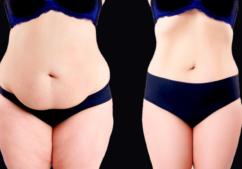 תמונות שאיבת שומן לפני ואחרי, ד״ר הלן קסטיאל גרין מומחית לכירורגיה פלסטית