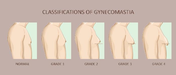סוגי גניקומסטיה, דר׳ הלן קסטיאל גרין מבצעת ניתוח גינקומסטיה במינימום צלקות אשר מיקומם מוסתר בקוי מתאר טבעיים של בית החזה.