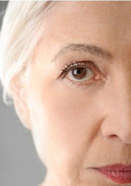 תמונת מתיחת פנים אחרי, דר, הלן קסטיאל גרין מומחית לכירורגיה פלסטית