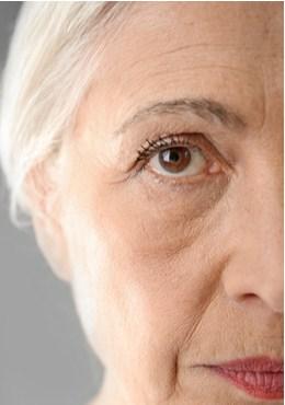 תמונת מתיחת פנים לפני, דר, הלן קסטיאל גרין מומחית לכירורגיה פלסטית